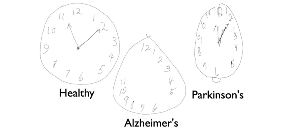 قلم دیجیتالی Anoto برای تشخیص بیماری های آلزایمر