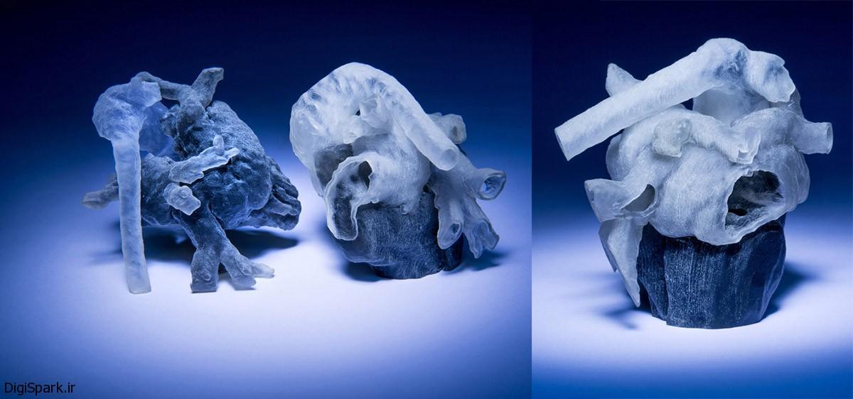 قلب پرینت شده سه بعدی با استفاده از MRI