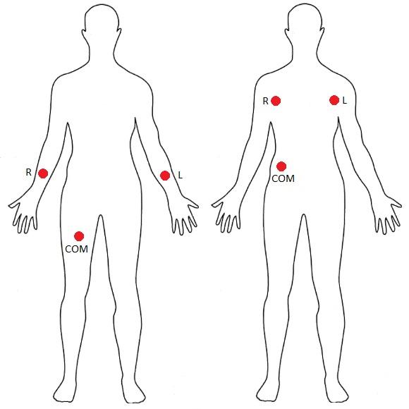 محل اتصال پدهای ضربان قلب AD8232 - دیجی اسپارک